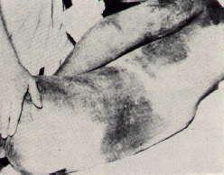 Massive tissue bleeding in victim of a boomslang bite.