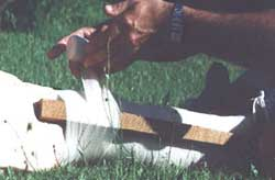 snake bite pressure bandage