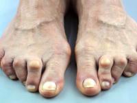 rock-climber-toe-deformity
