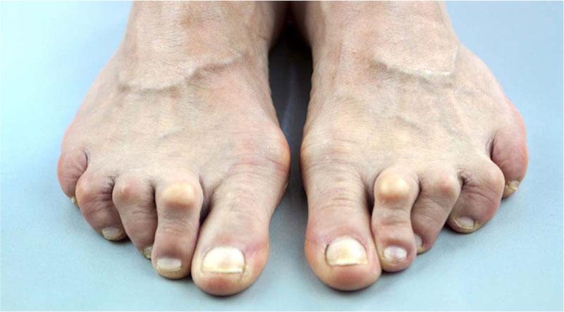 rock climber toe deformity shoe