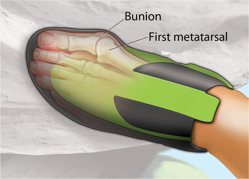 inside shoe bunion rock climber