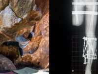 Jethro climbing in Rocklands combined with an x-ray photo